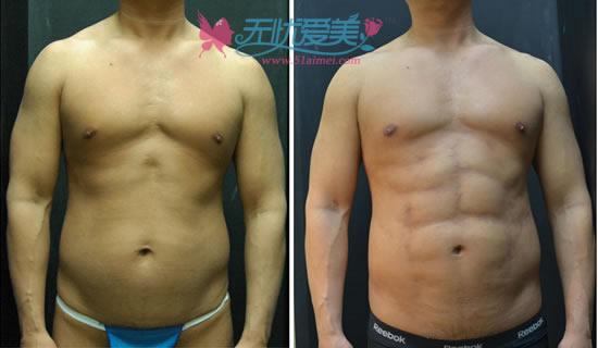 韩国Seroi整形医院吸脂吸出腹肌对比案例图