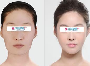 韩国脸型轮廓整形