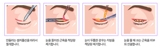 眼部手术图解